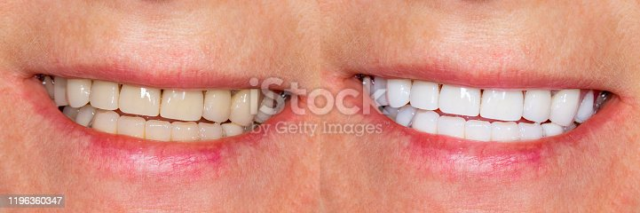 Dental veneers, ceramic crowns before and after treatment. Close-up of teeth and smile of person.