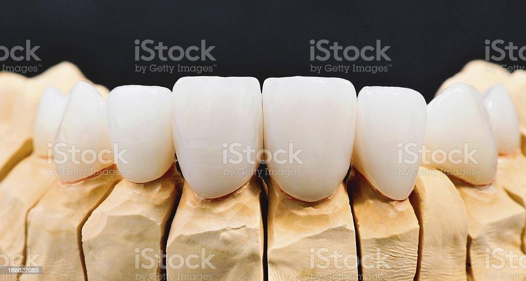 Dental Veneers royalty-free stock photo