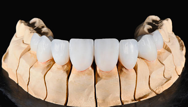 Dental Veneers – Foto