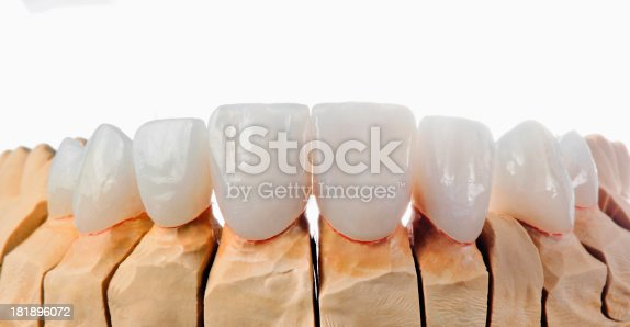 Dental micro veneer. Selective focus.You can find more dental related images like this one here :