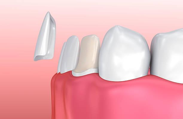 dental veneers: porcelain veneer installation procedure. - enamel stock photos and pictures