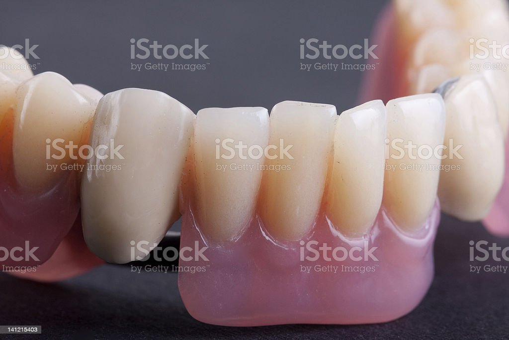dental wax model royalty-free stock photo