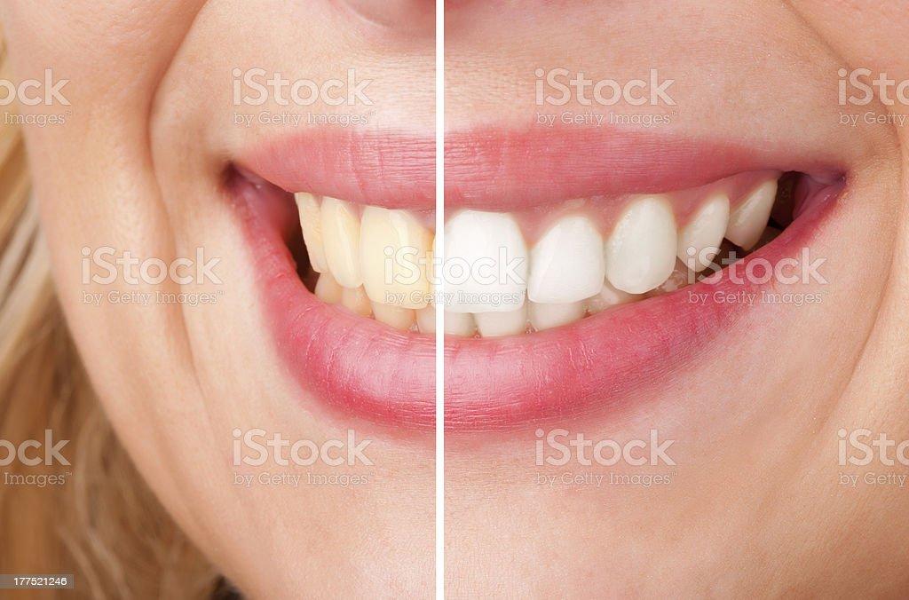 Dental Whitening stock photo