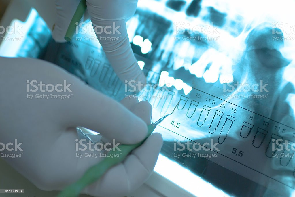 Dental X Ray royalty-free stock photo