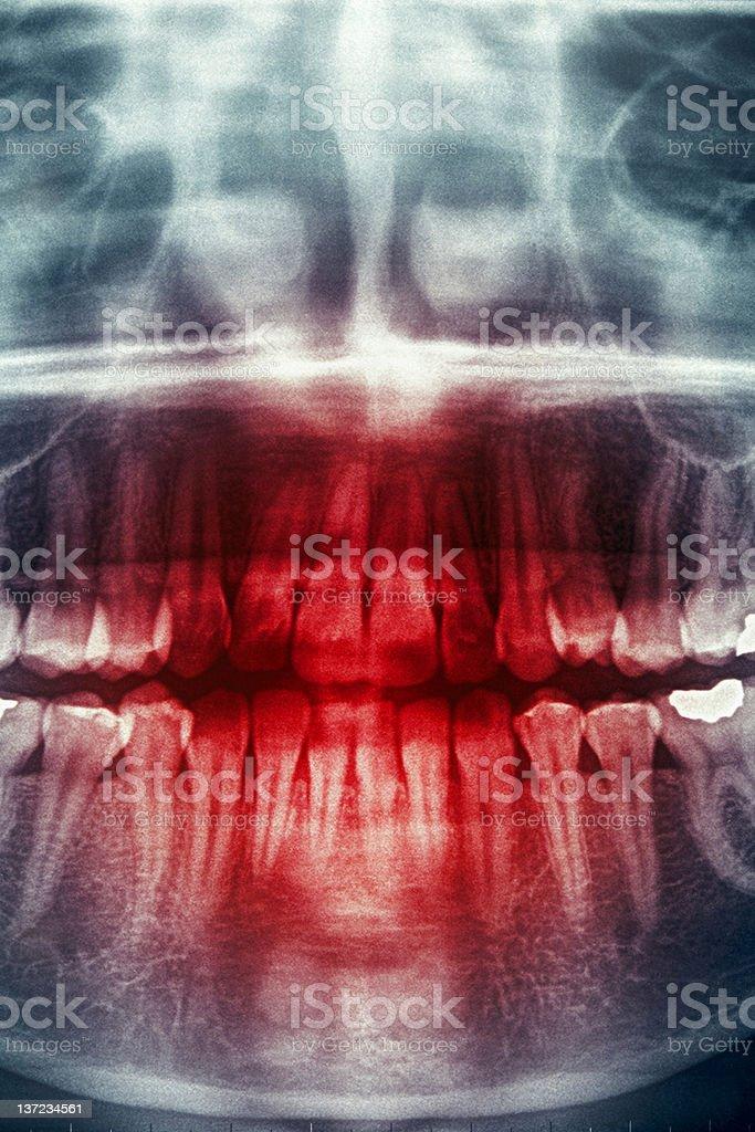 Dental X-Ray, horror skull royalty-free stock photo