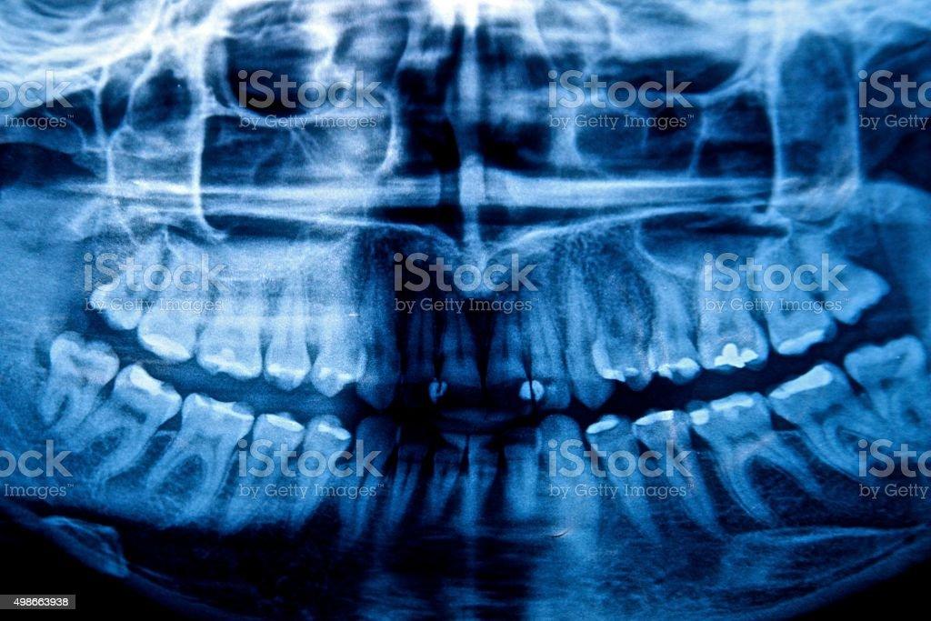 Dental x-ray human teeth anathomy medical health rtg radiograhy scan