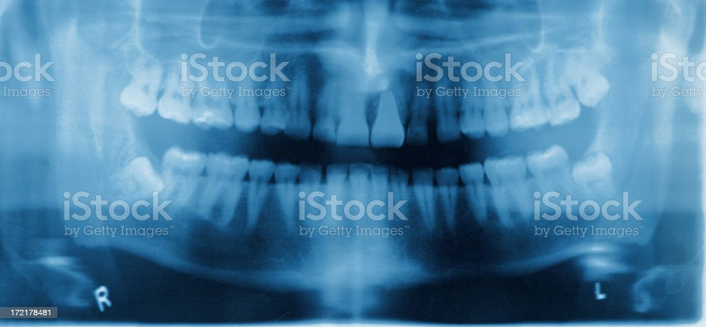 Dental X-ray in blue and purple stock photo