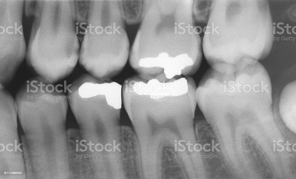 Dental X-ray of Teeth with Metal Fillings stock photo