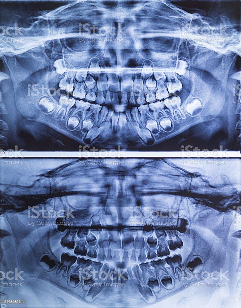 Fotografía de Radiografía Dental Vista Panorámica De Los Niños y más ...