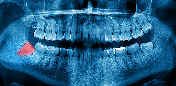 dental x-ray panoramic - wisdom stock pictures, royalty-free photos & images