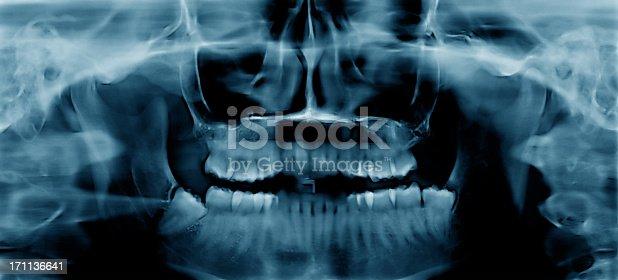 Blue toned dental Xray image