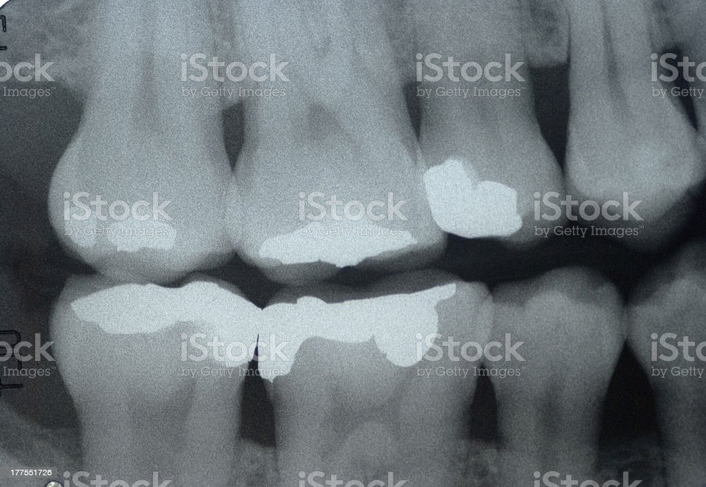 Dental x-ray  ( Bitewing technic ) stock photo