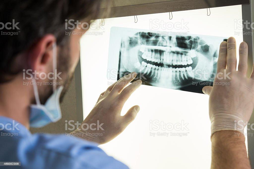 x-ray dentaire photo libre de droits
