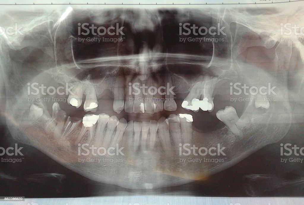 Fotografía de Dientes Dentales De Rayos X y más banco de imágenes de ...