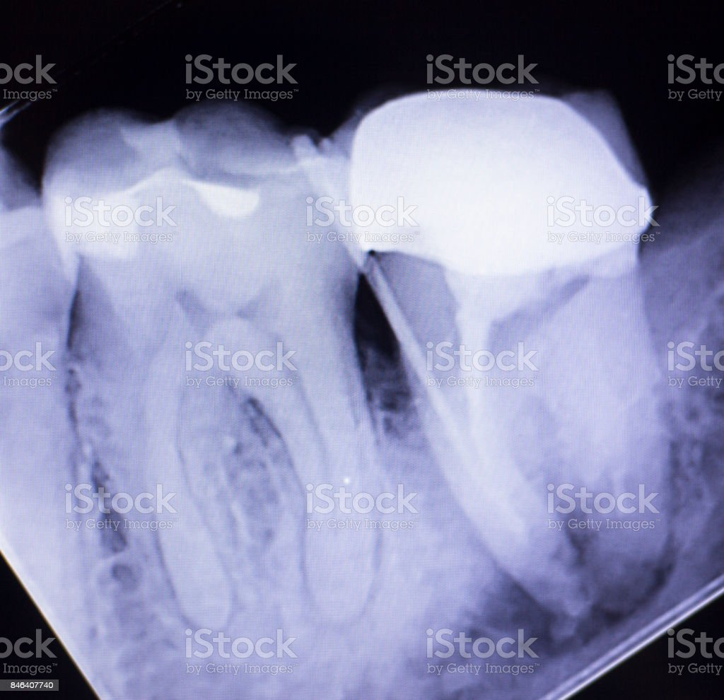 Dental xray test scan of tooth with crown filling and root canal infection inflamation of molar back teeth. stock photo