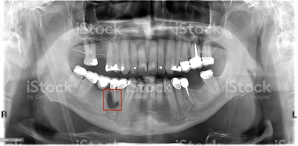 Zahnröntgen Zwei Zahnwurzeln Mit Entzündung Stock-Fotografie und ...