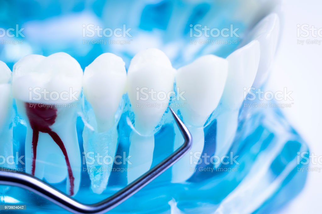 Dentist cleaning teeth with titanium metal tooth pick instrument to remove plaque and decay. stock photo