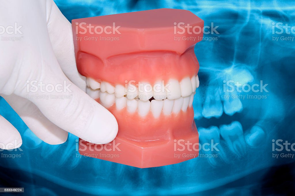 dentist hand show dental model over x-ray stock photo