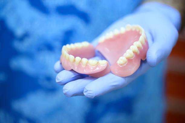 tandarts houden gebit - kunstgebit stockfoto's en -beelden