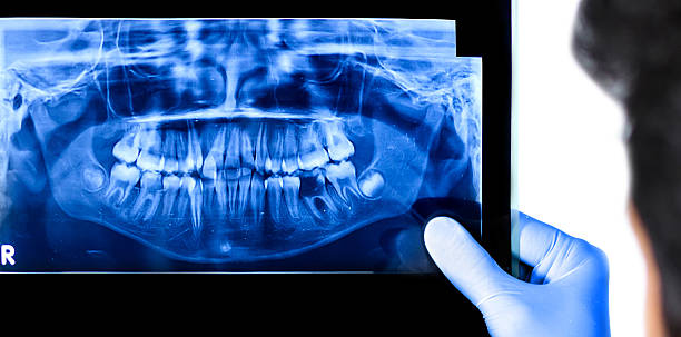 Dentist holding & viewing full mouth X-ray of a patient stock photo