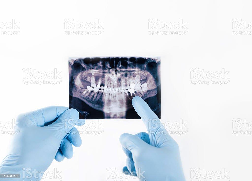 Dentista En Guantes Azul Sosteniendo Una Imagen De Rayos X ...