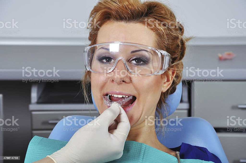 dentist inserts splint stock photo