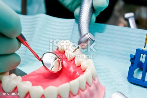 Close-up of a dentist in training to remove tooth decay on a lower part of dentures.