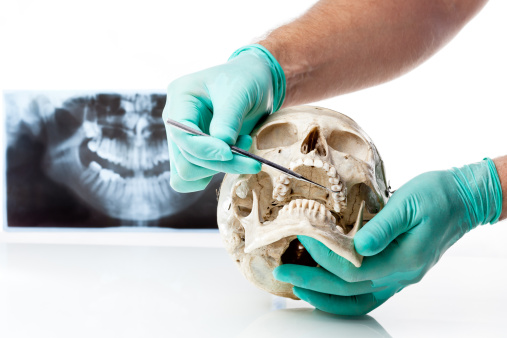 istock Dentist showing dental caries in a human skull. 137215534