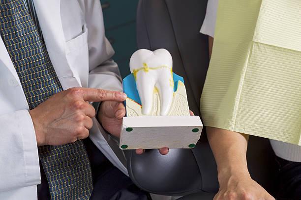 dentist showing patient how to care for teeth with display - tandvleesontsteking stockfoto's en -beelden