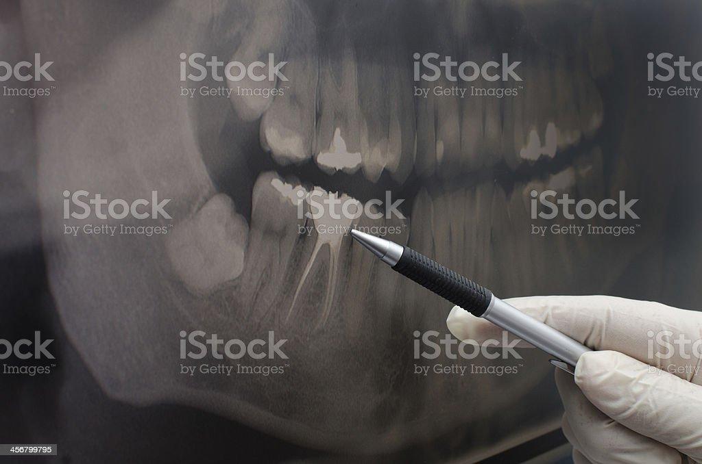 Dentist showing something on dental x-ray image stock photo