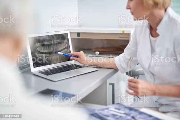 Zahnarzt Zeigt Das Patientenproblem Auf Der Röntgenaufnahme Stockfoto und mehr Bilder von 50-54 Jahre