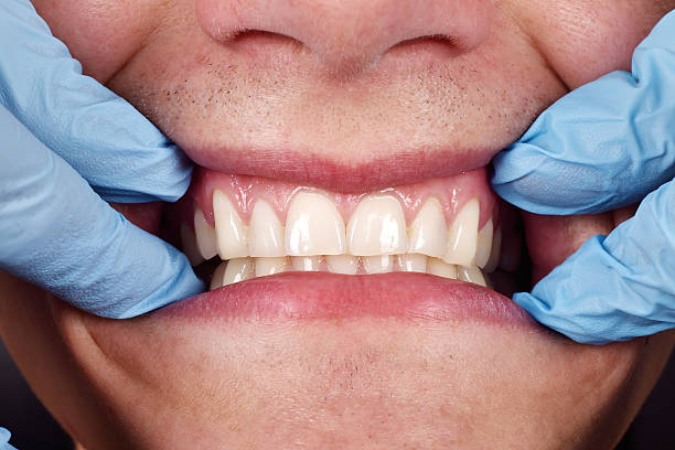 اسعار عمليات تجميل الاسنان
