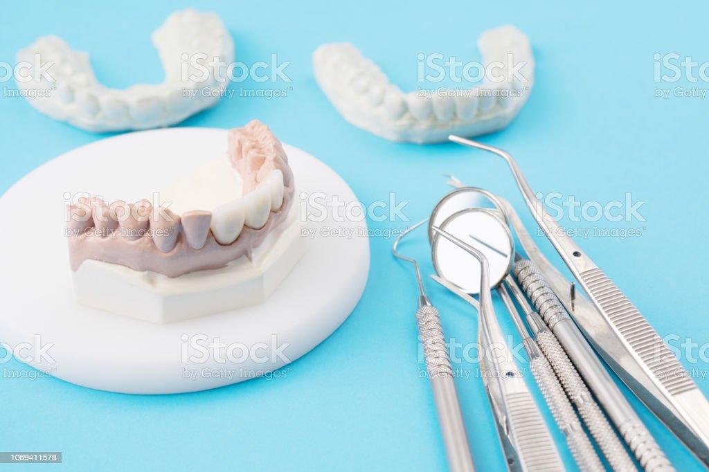 outils de dentiste et modèle prothétique. - Photo