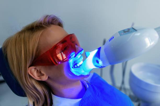tandheelkunde tandarts werken tanden whitening tandheelkundige medische proces - tanden bleken stockfoto's en -beelden