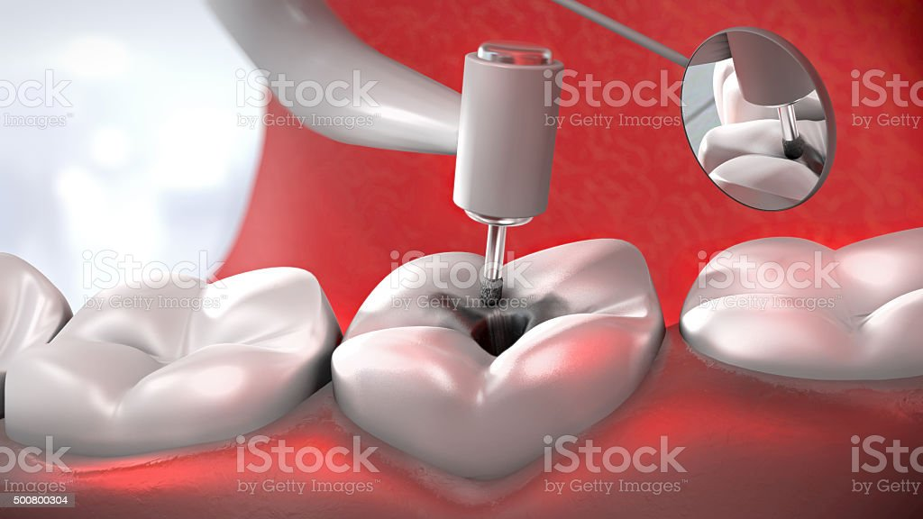 dentist's drill treating a sick tooth stock photo