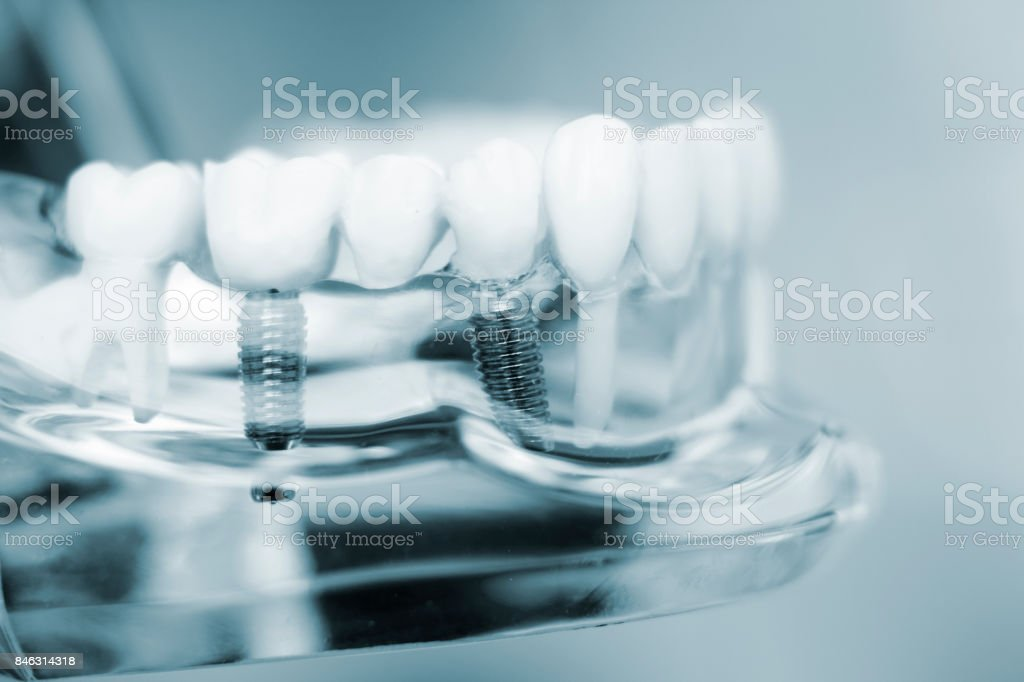 Dentists tooth plastic model with screw implant for teaching, learning and patients in dental office showing teeth and gums. stock photo