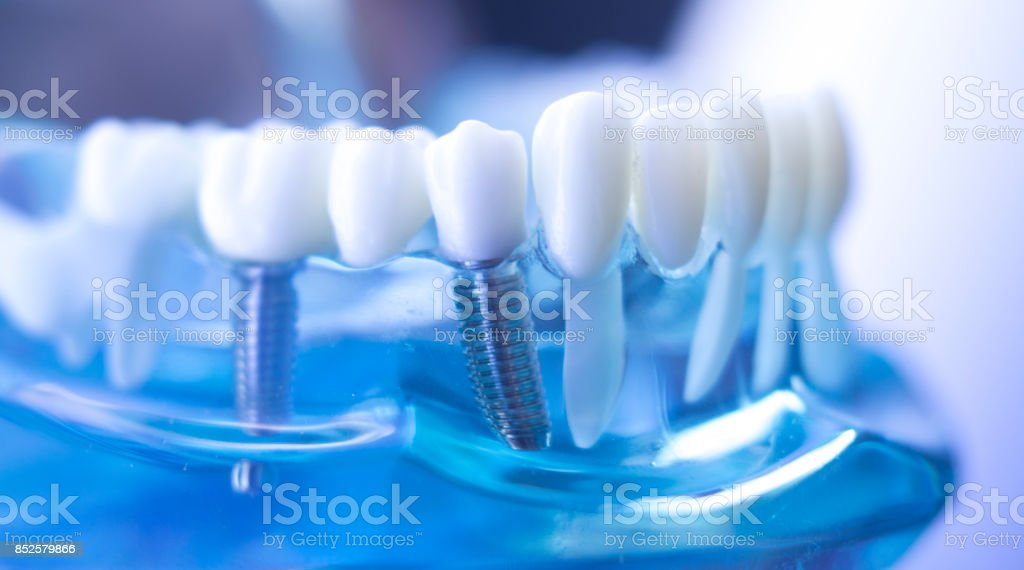 Dentsts dental prosthetic teeth, gums, roots teaching student model with titanium metal screw implant. stock photo