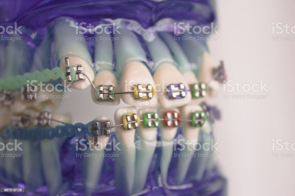 Denture for students with classic dental metal orthodontics. Color aesthetic couplings. stock photo
