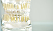 Model of a denture showing how the system of ceramic braces on teeth is arranged