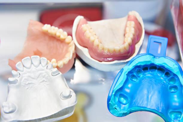 Denture molds stock photo