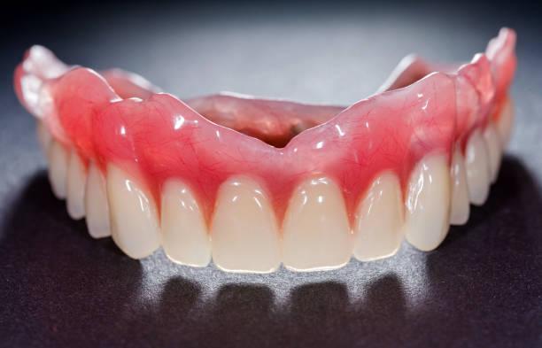 Denture - Photo
