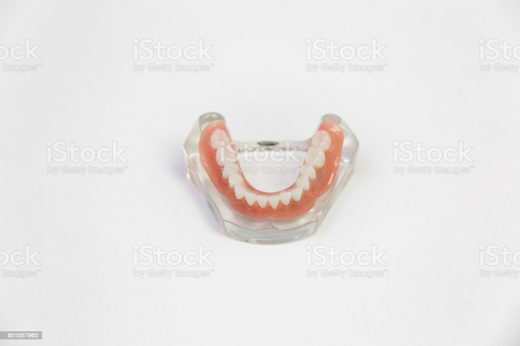 Dentures isolated on a white background. Denture, close up stock photo