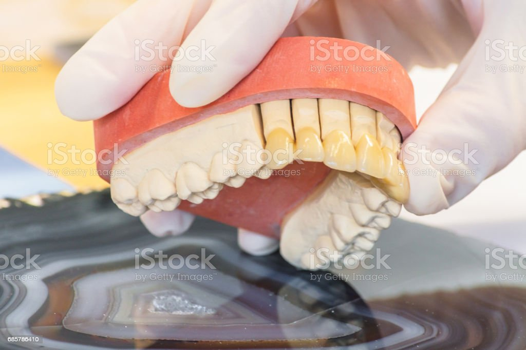 Dentures, prosthesis and oral hygiene. royalty-free stock photo