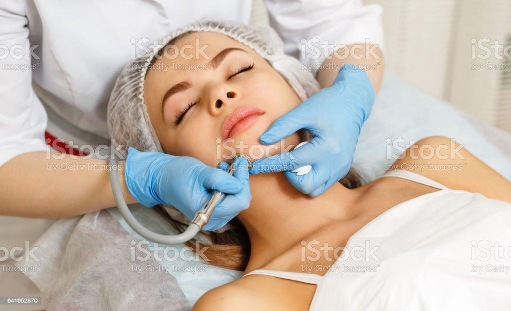 Dermabrasion face. Hardware cosmetology. stock photo