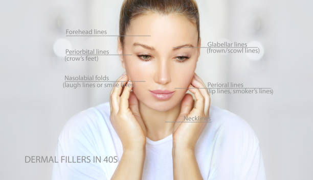dermal filler treatments .Hyaluronic acid injections for specific areas.Correct wrinkles dermal filler treatments .Hyaluronic acid injections for specific areas.Correct wrinkles dark spots face stock pictures, royalty-free photos & images