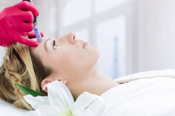 Dermapen forehead treatment stock photo