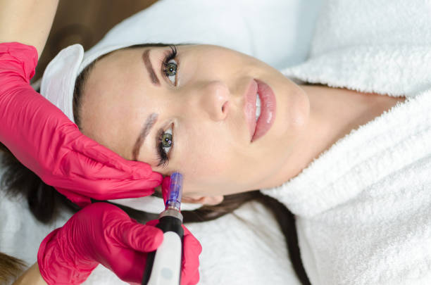 Dermapen Mesoterapia no rosto feminino em spa - foto de acervo