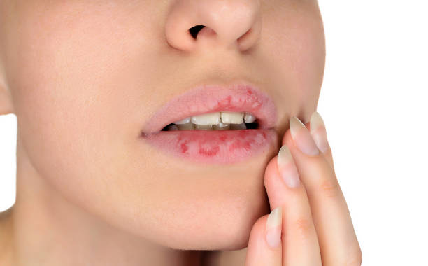 Dermatillomania skin picking. Woman has bad habit to pick her lips. Harmful addiction based on anxiety stress and dry lips. Excoriation disorder. Sick cracked damaged tissue. stock photo