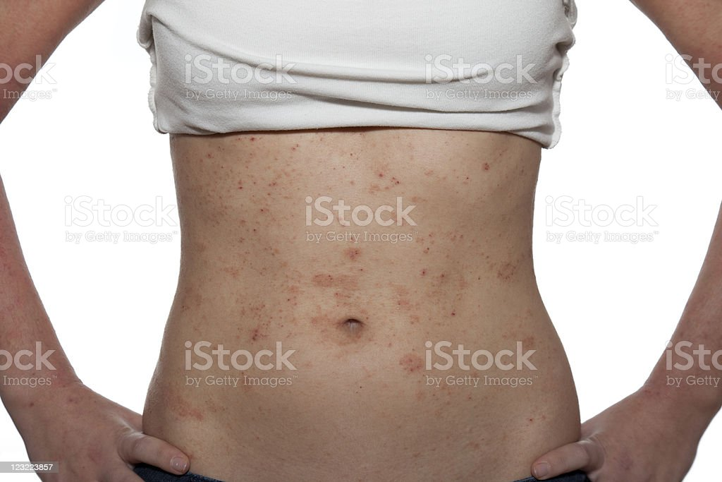 Dermatitis stock photo