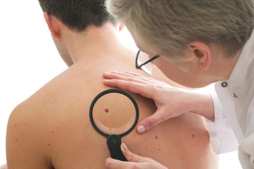 Dermatologist examines a mole